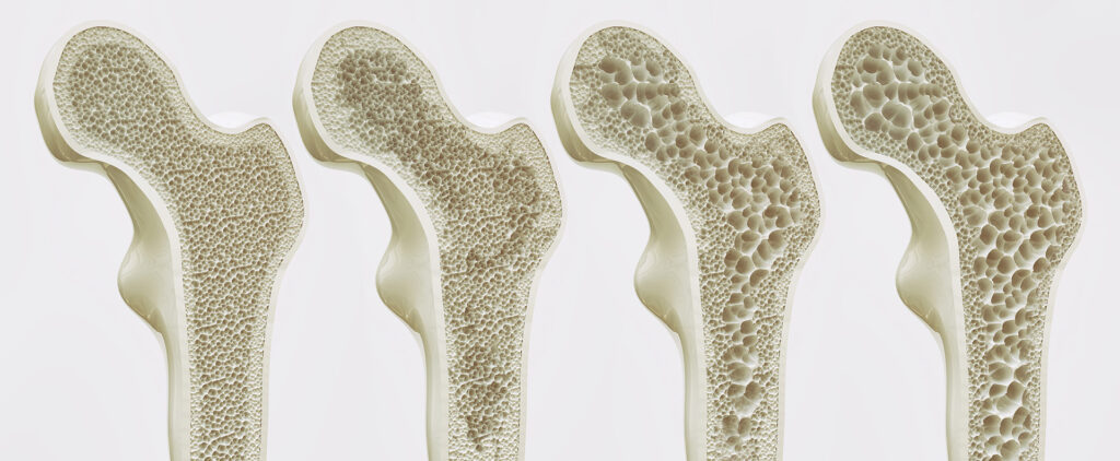 Saluris - Osteoporosis
